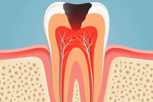 root-canal-bonney-lake